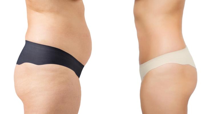 obtenir de nouveaux nouvelles promotions profiter de la livraison gratuite Vaser Lipo : la liposuccion par ultrasons - Multiesthetique.fr