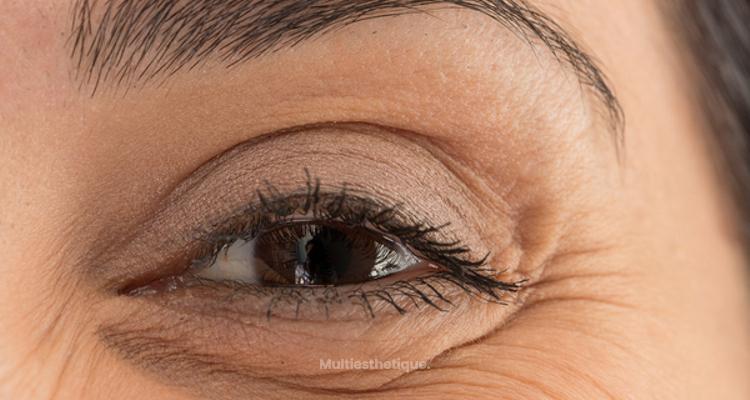 eliminer les rides sous les yeux