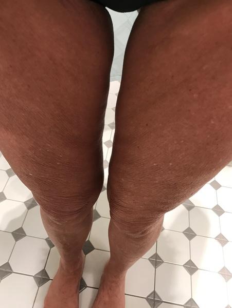 j 39 ai le haut des jambes qui me complexe norm ment je ne suis pas tr s grosse 48 a 50kg pour. Black Bedroom Furniture Sets. Home Design Ideas
