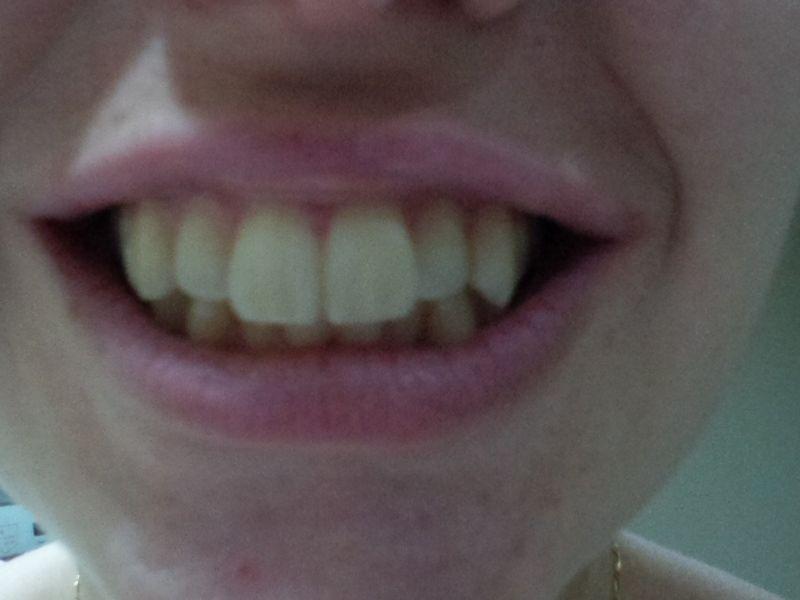 mes dents sont jaunes je voudrais les blanchir blanchiment des dents. Black Bedroom Furniture Sets. Home Design Ideas